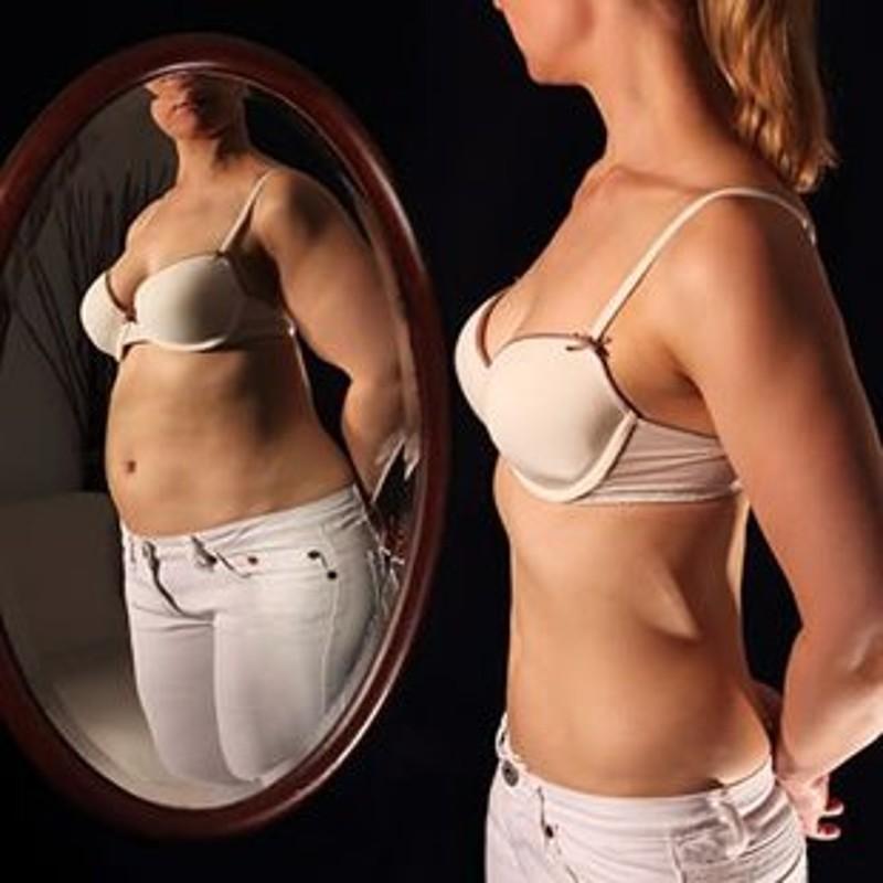 obesita-anoressia-2